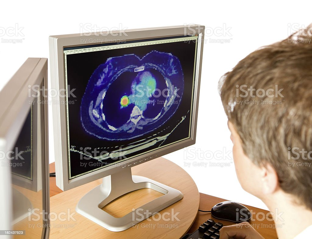Radiologist Reviews a PET/CT Image Showing Lung Cancer royalty-free stock photo