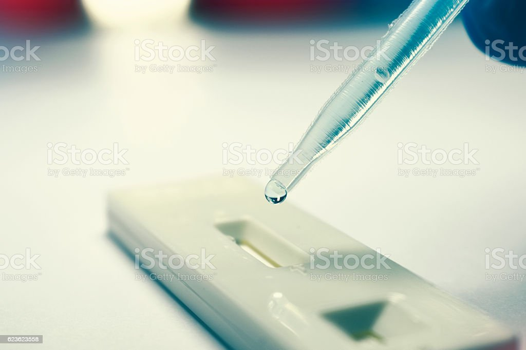 Rapid Test with pipette dropping analysis fluid stock photo