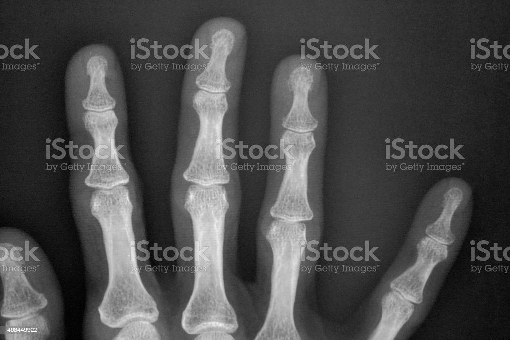 X - Ray Fingers stock photo