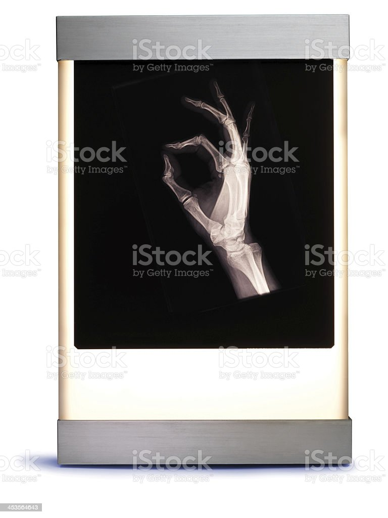 X Ray of Hand on Light Box royalty-free stock photo