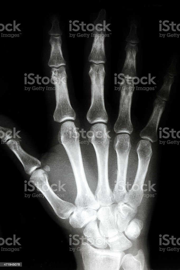 X Ray of The Right hand stock photo