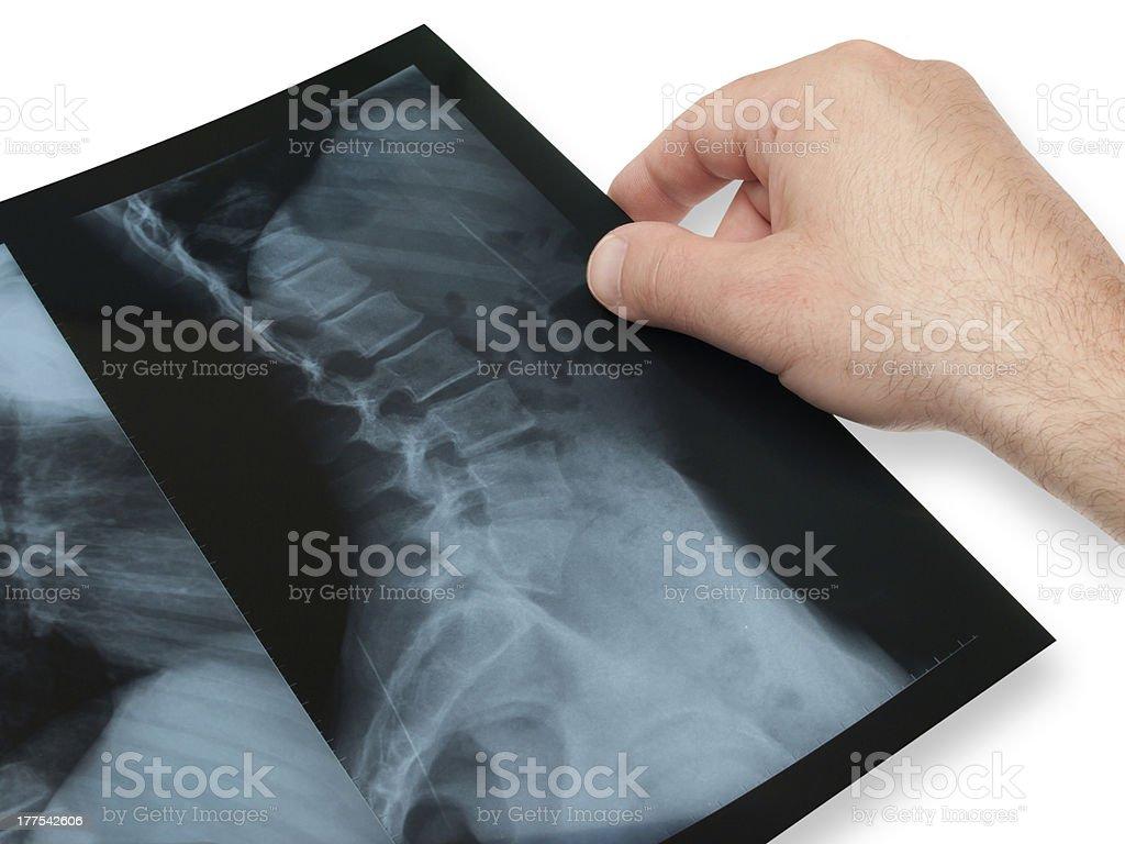 X- ray royalty-free stock photo