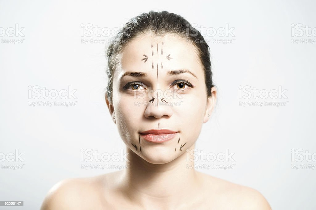 Ready for facial plastic surgery royalty-free stock photo