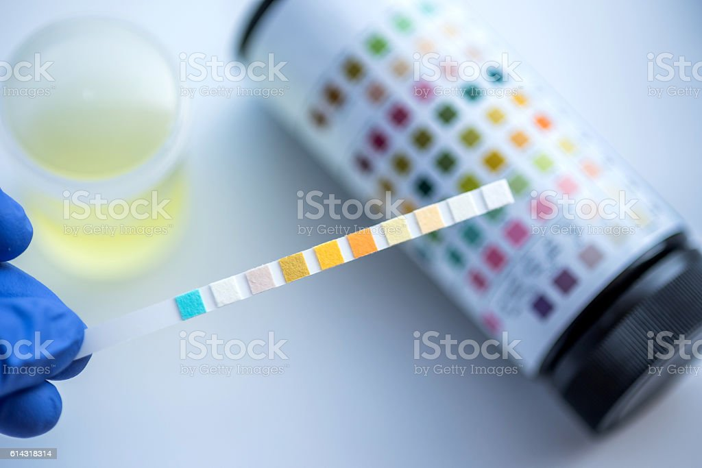 Reagent Strip for Urinalysis , Routine Urinalysis, check-up anal stock photo
