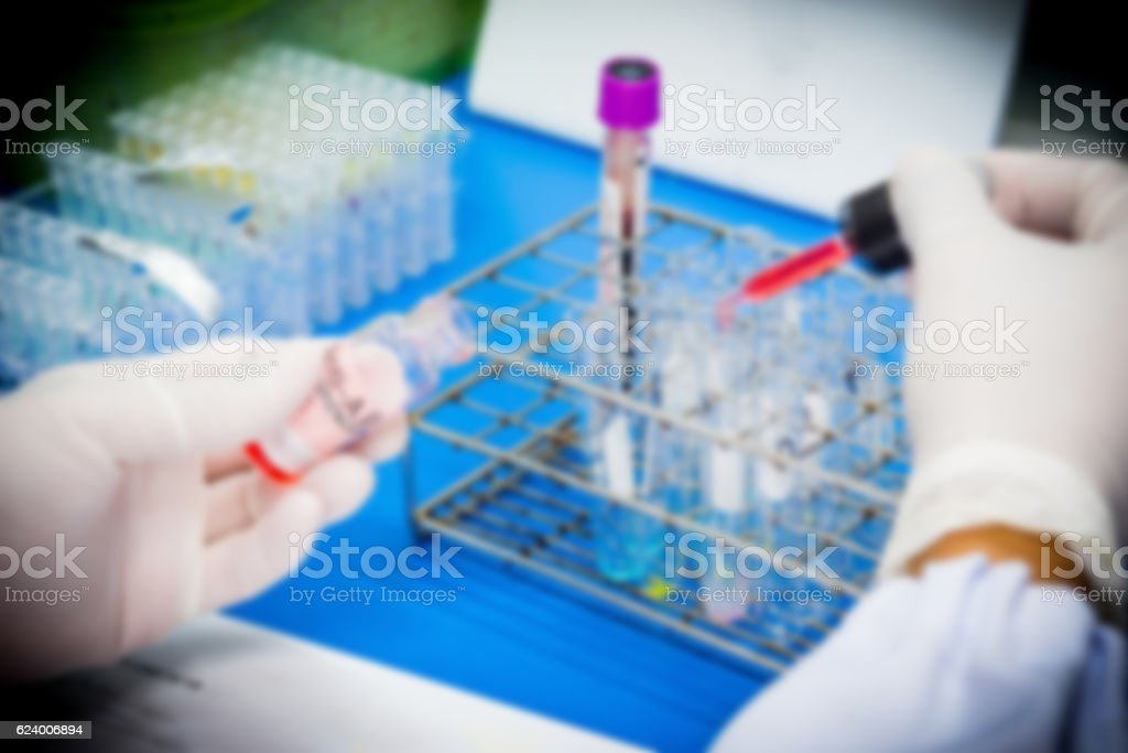 Reagert for blood group in laboratory.Blood grouping test. stock photo