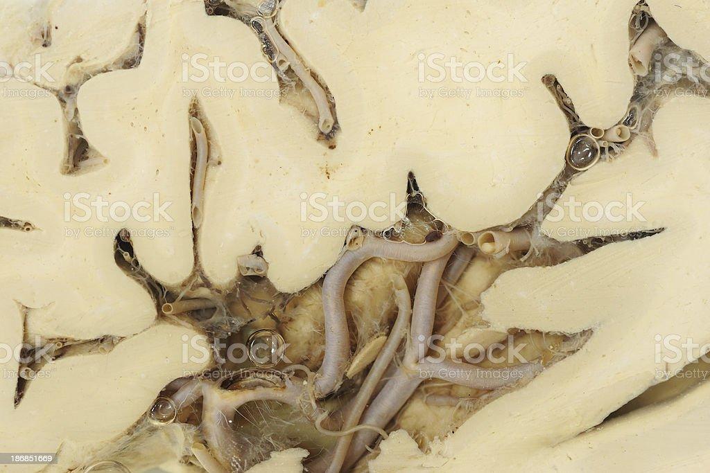 Real human brain royalty-free stock photo