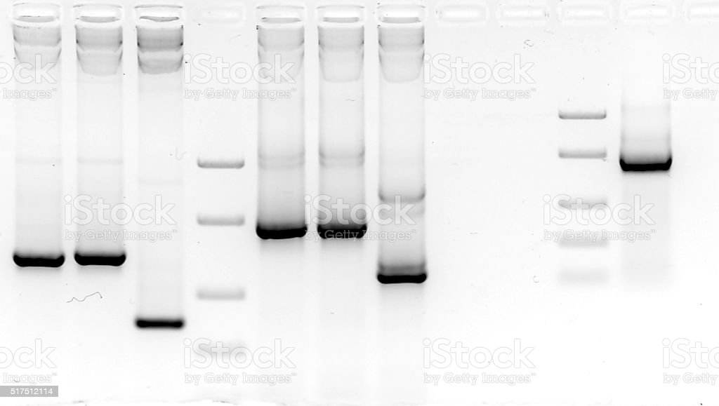 Real view of mutation screening in agarose gel stock photo