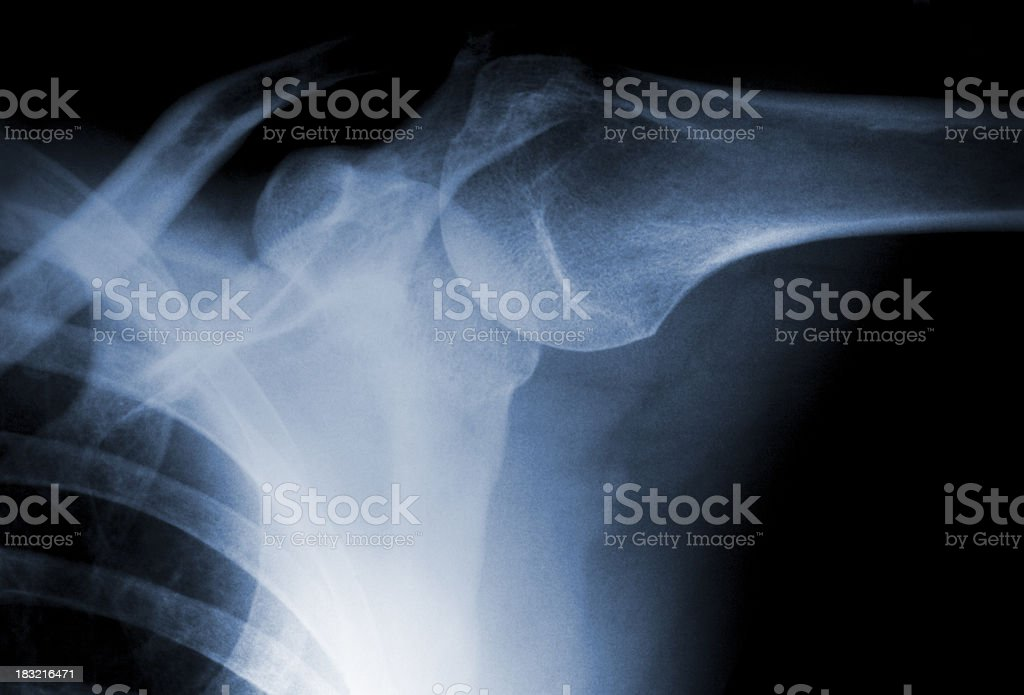Real X-ray image of a shoulder with slight calcification royalty-free stock photo
