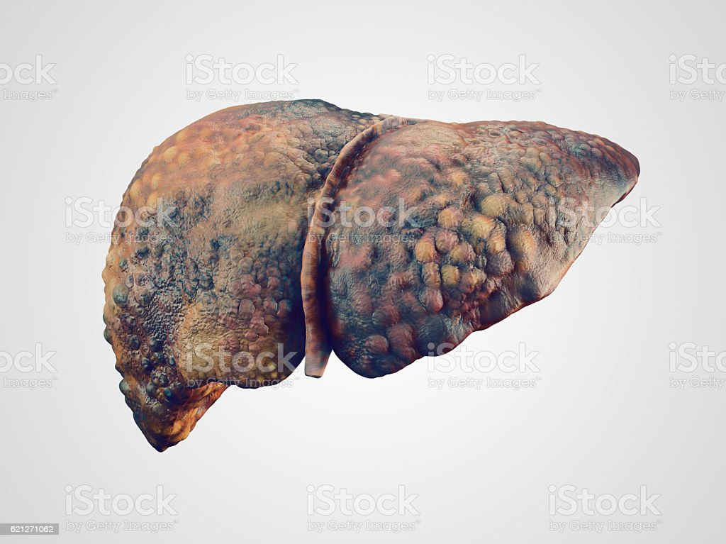 Realistic illustration of cirrhosis of human liver stock photo