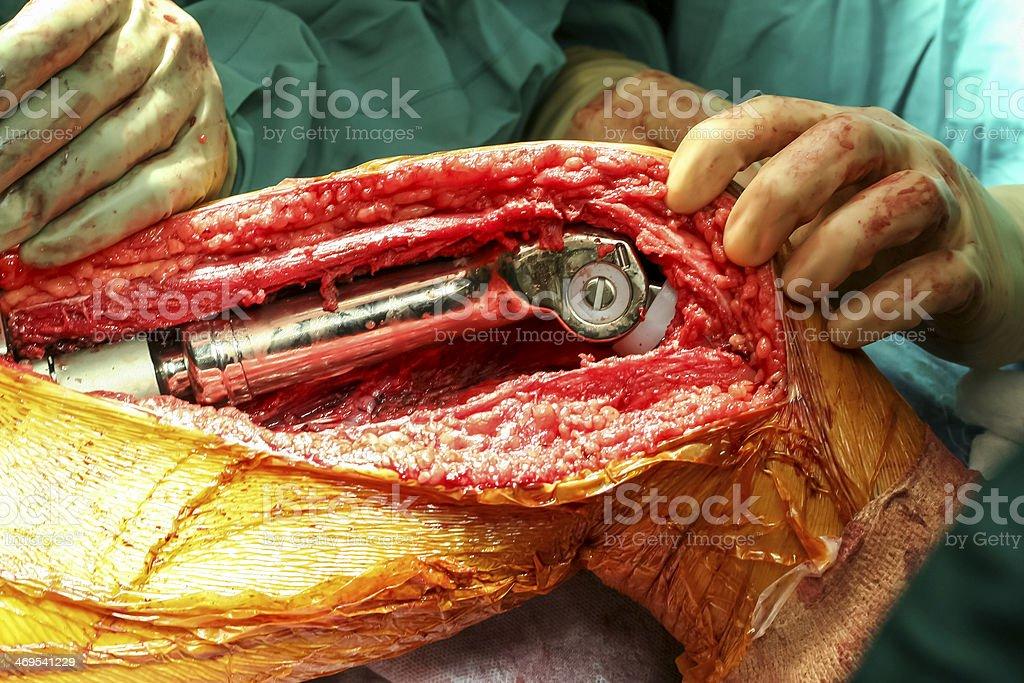 Reconstructive distal femur and knee surgery stock photo