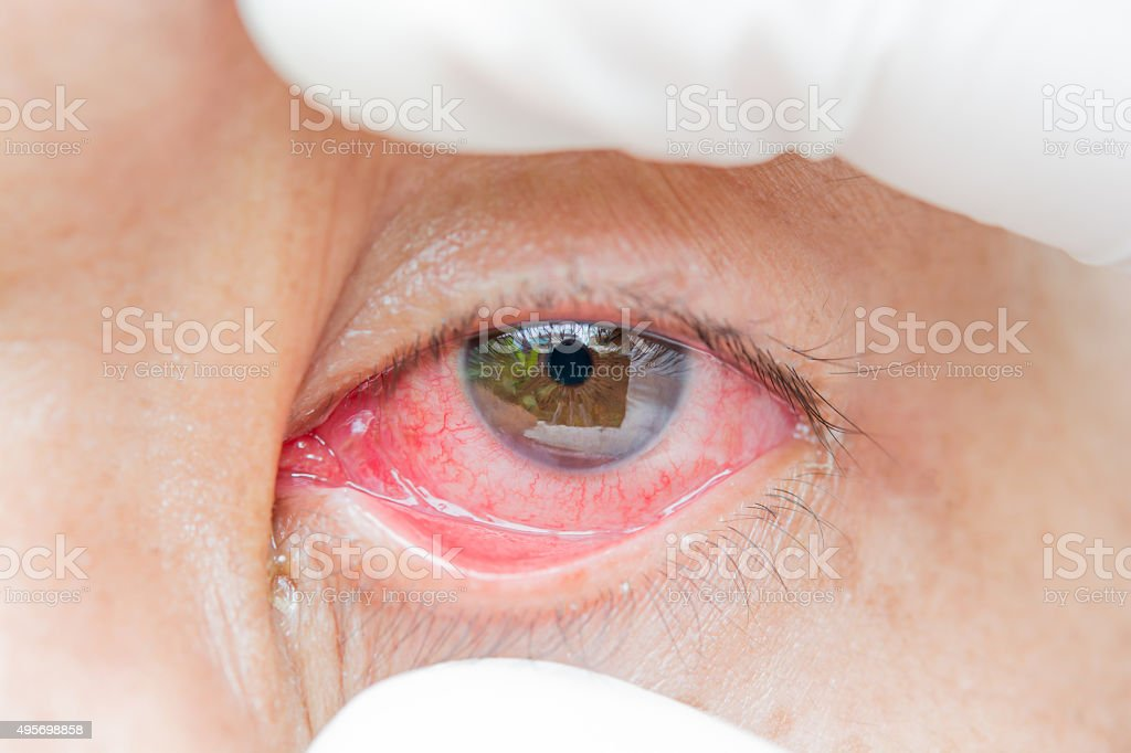 red bloodshot eye stock photo