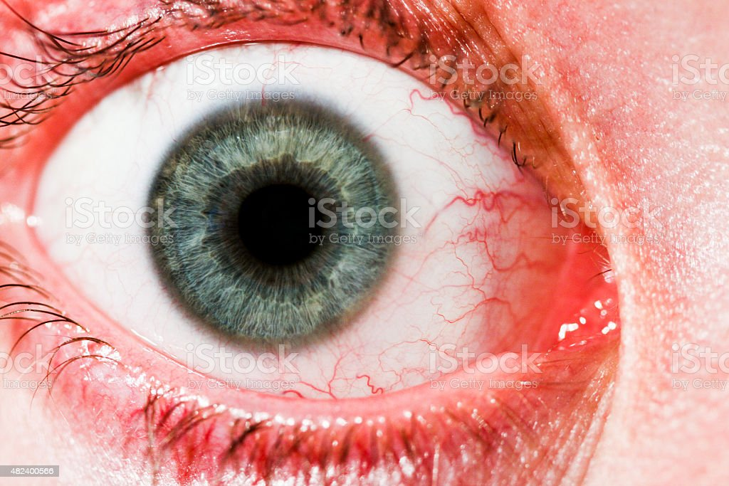 Red Eye stock photo