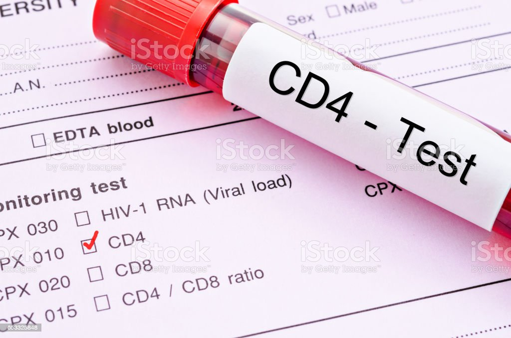 Red mark and Blood sample in tube for CD4 cell testing stock photo
