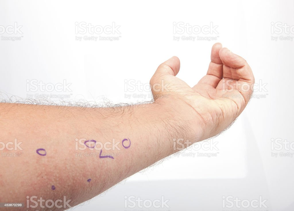 Red Skin Rash With Bumps. stock photo