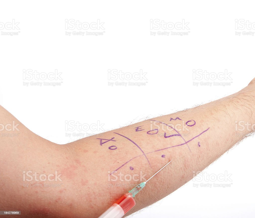 Red Skin Rash With Bumps, Scabs & Pimples stock photo