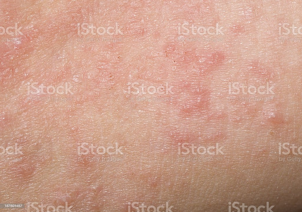 Red Skin Rash With Bumps, Scabs & Pimples On Child stock photo