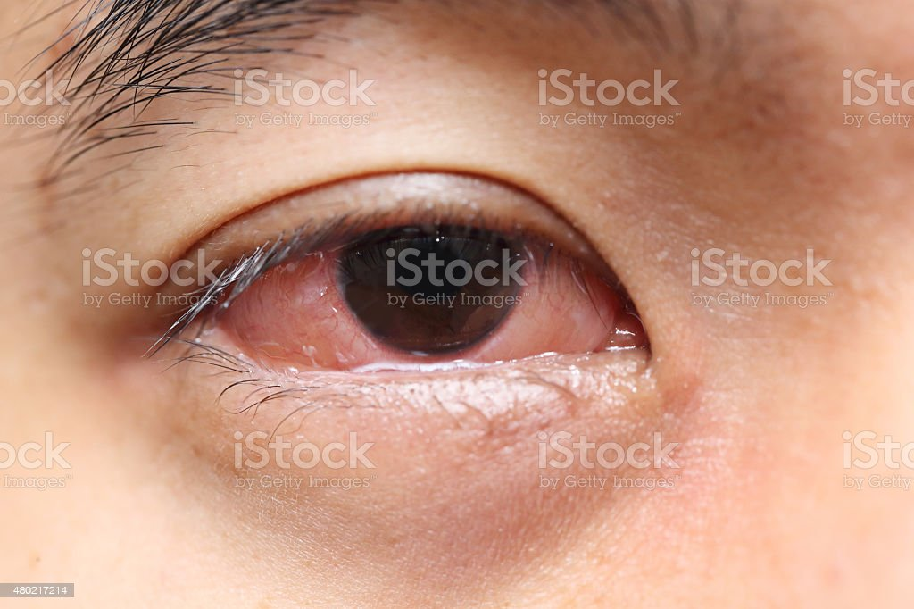red sore allergy eye stock photo
