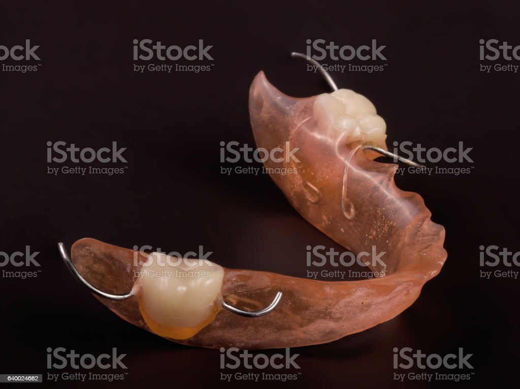 removable partial denture on a dark background stock photo