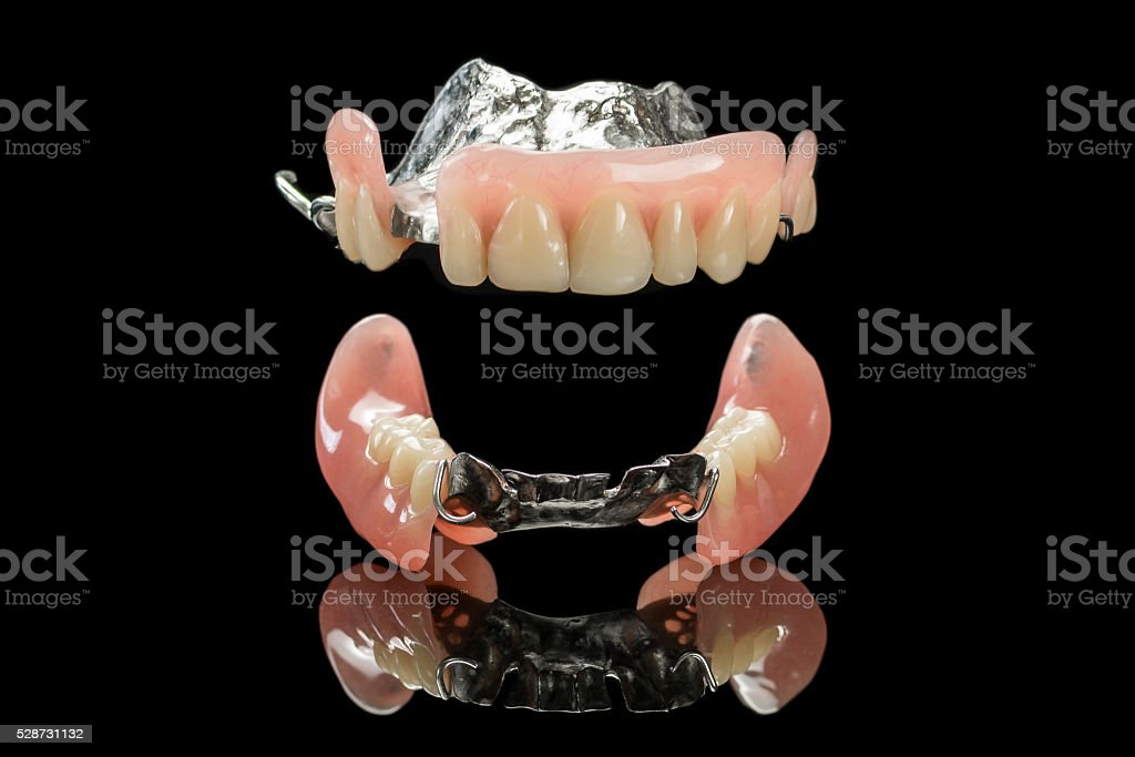 Removable partial denture royalty-free stock photo