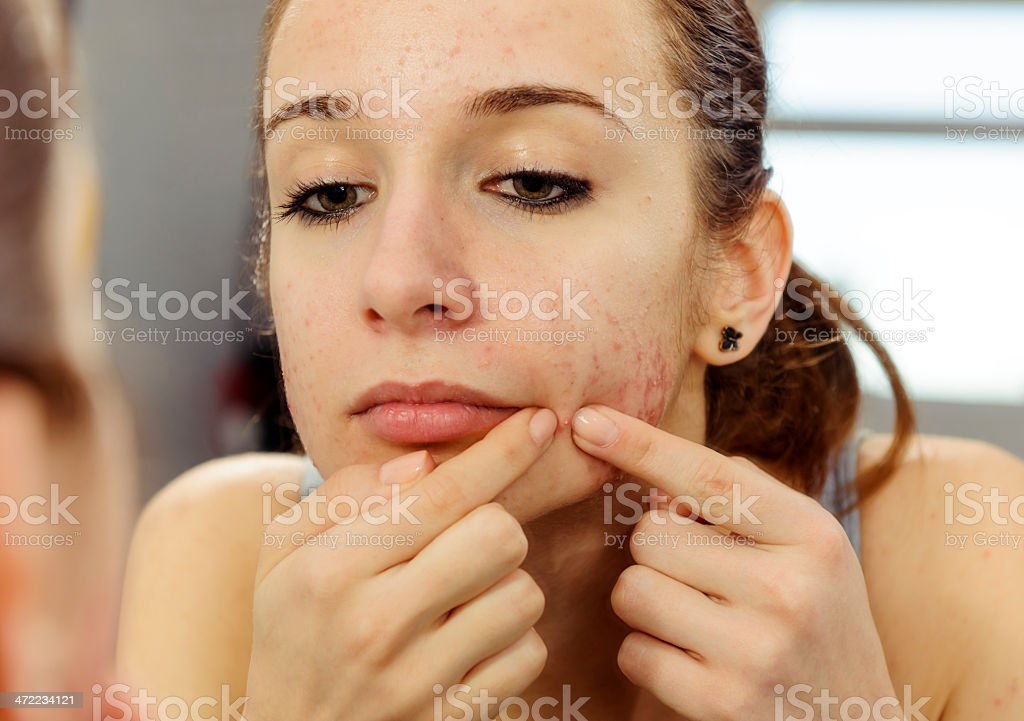 remove acne royalty-free stock photo