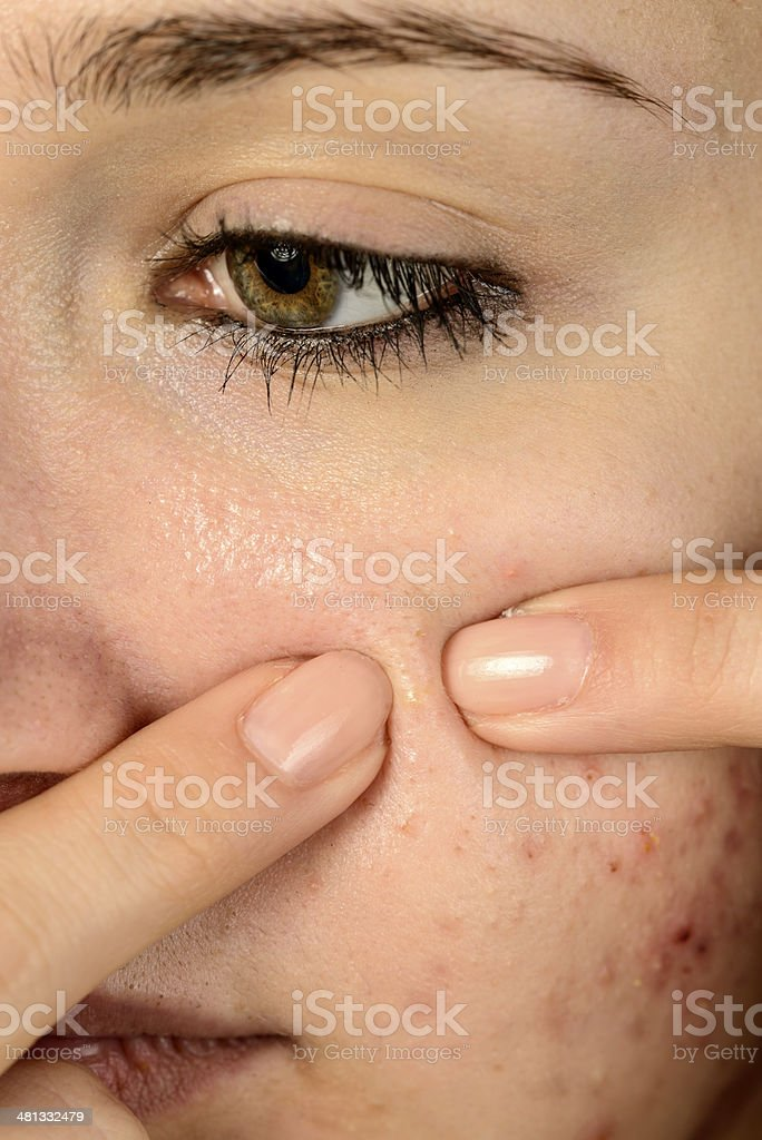 remove pimple, macro on teenager face royalty-free stock photo