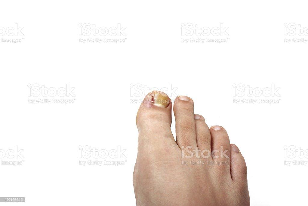 Removed ingrowing toe nail royalty-free stock photo