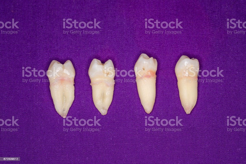 Removed wisdom tooth on purple background stock photo