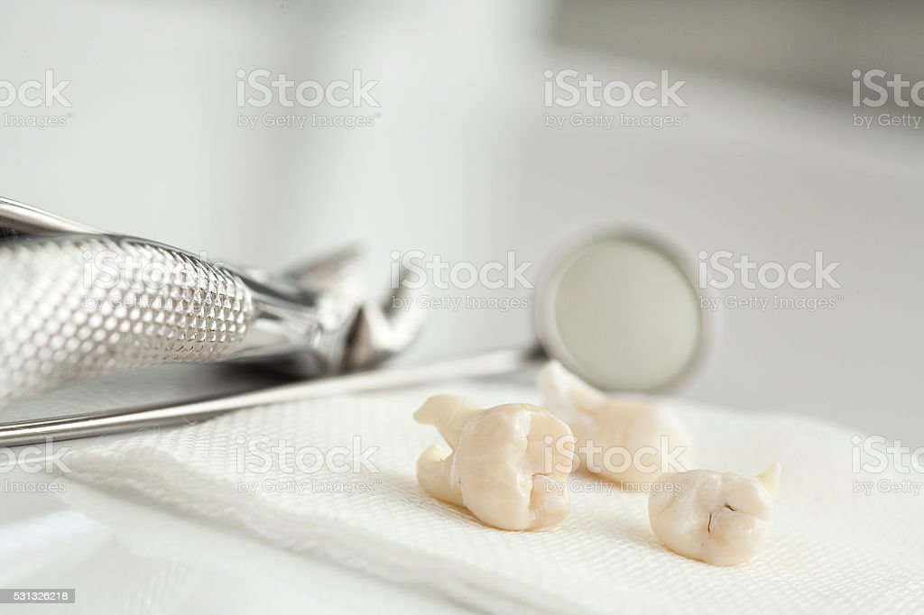 Removed wisdom tooth on white stock photo