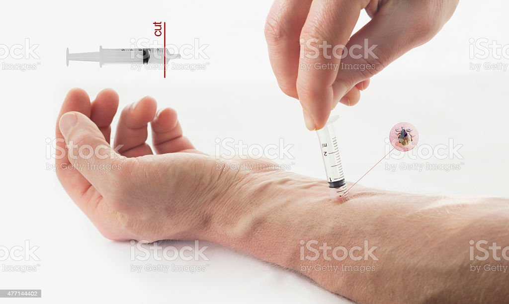 Removing a tick from skin with a syringe stock photo
