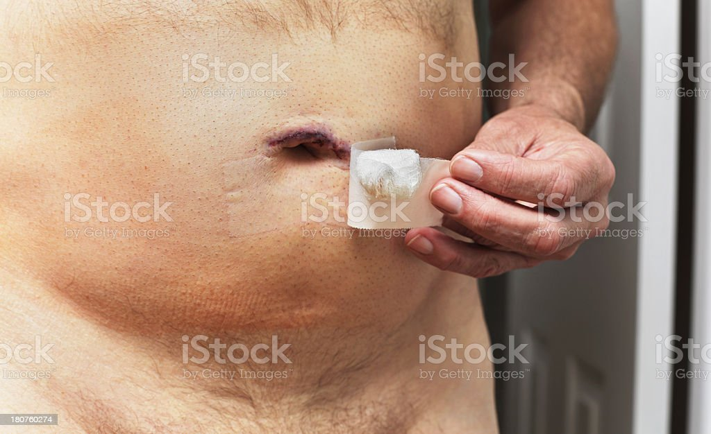Removing Bandage From Post Surgery Umbilical Hernia stock photo