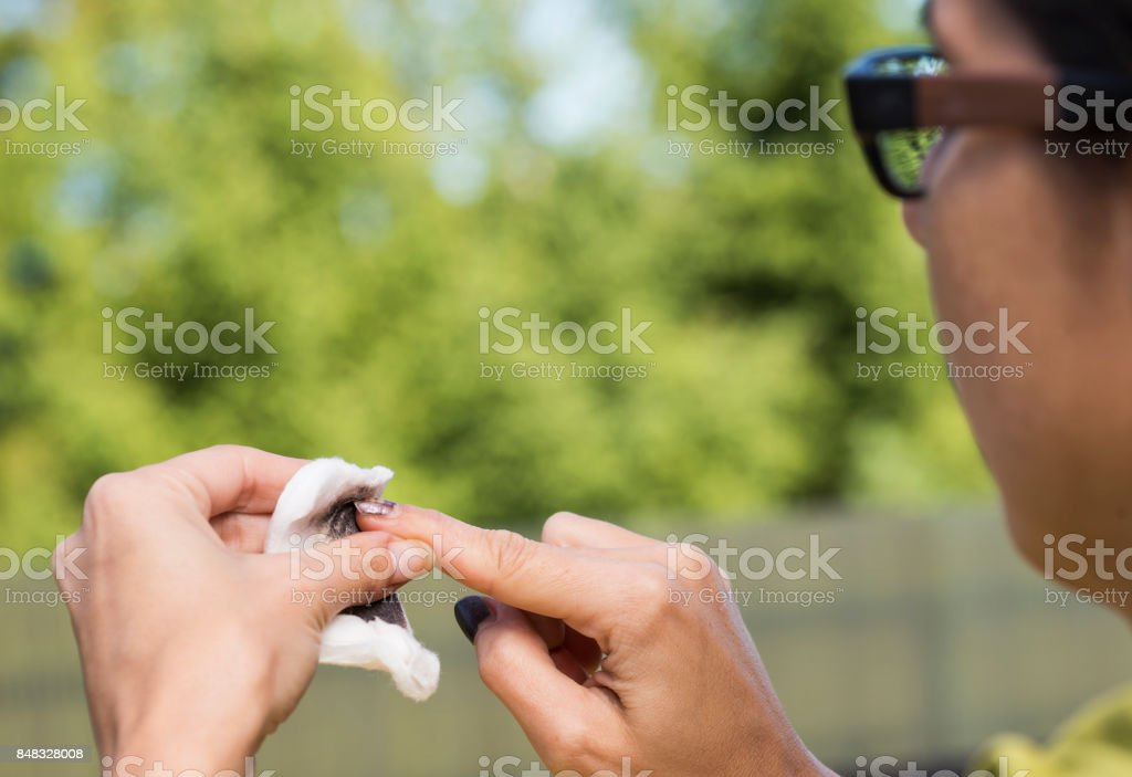 Removing old nail polish with acetone. stock photo