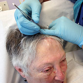 Removing stitches from a senior woman's head