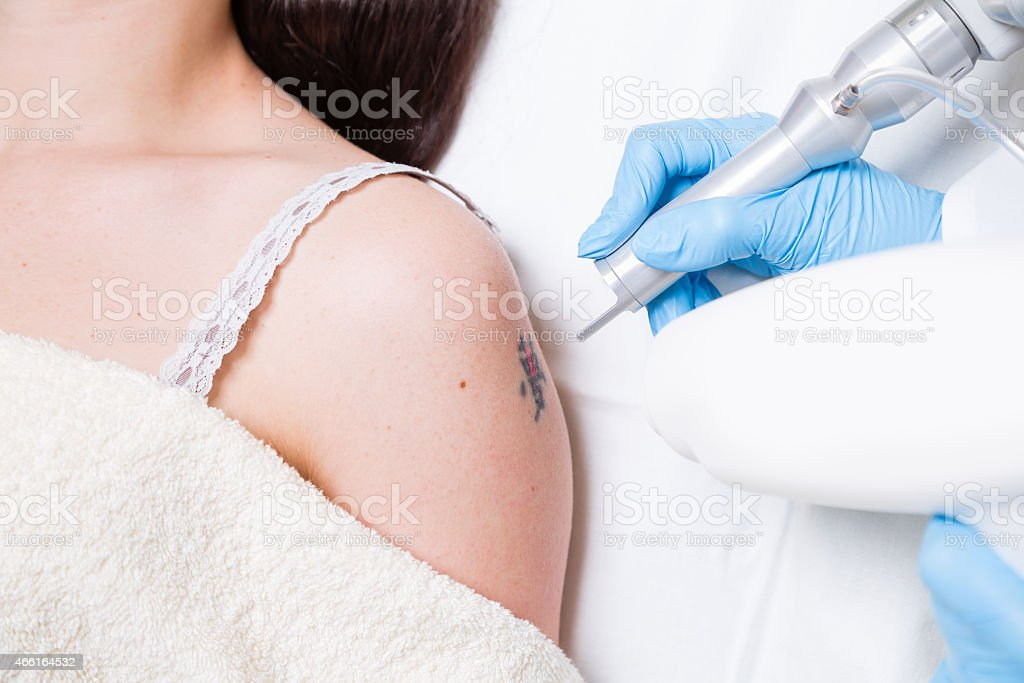 Removing tattoo stock photo