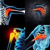 3D rendering human shoulder pain