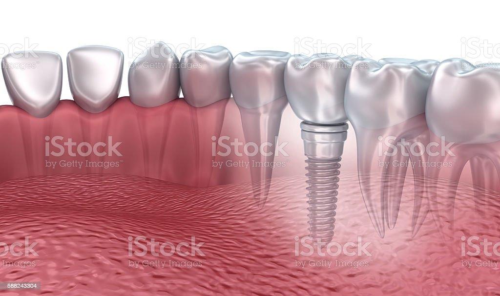 3D rendering : lower teeth and dental implant transparent render stock photo