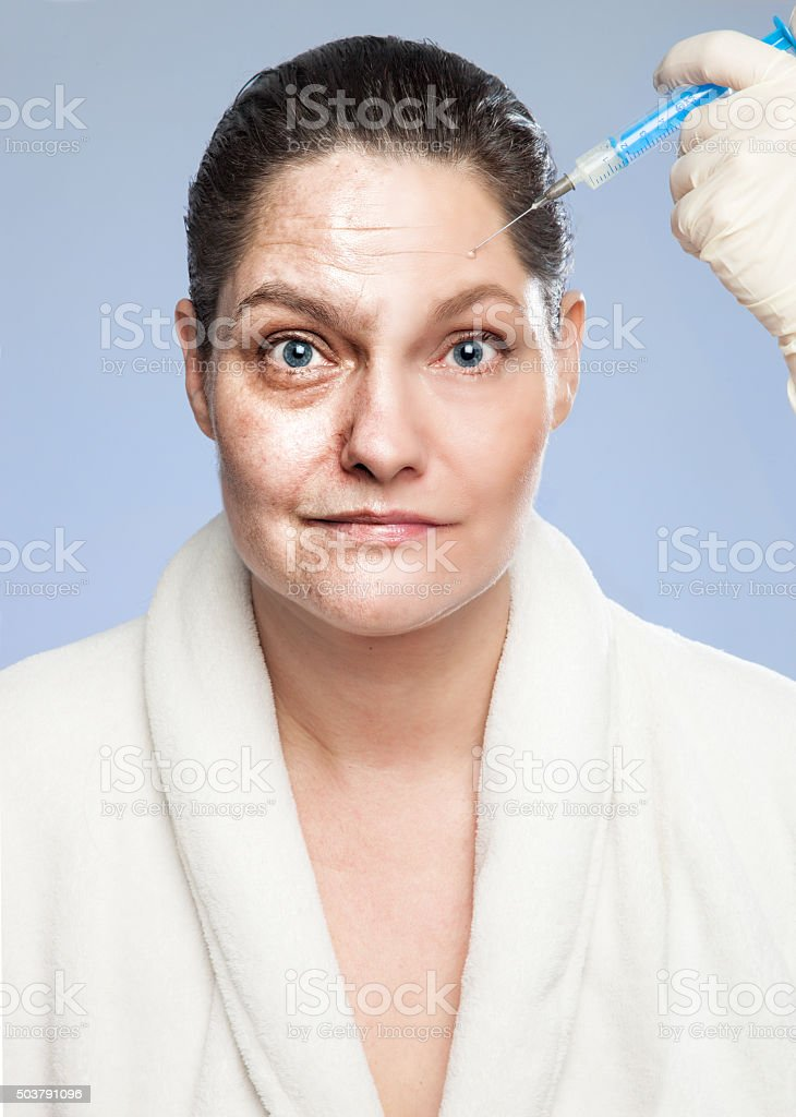 Renewing Myself - Botox Injection, from Old to Young stock photo