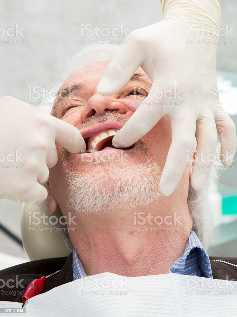 Repair of the upper jaw prosthesis insertion stock photo
