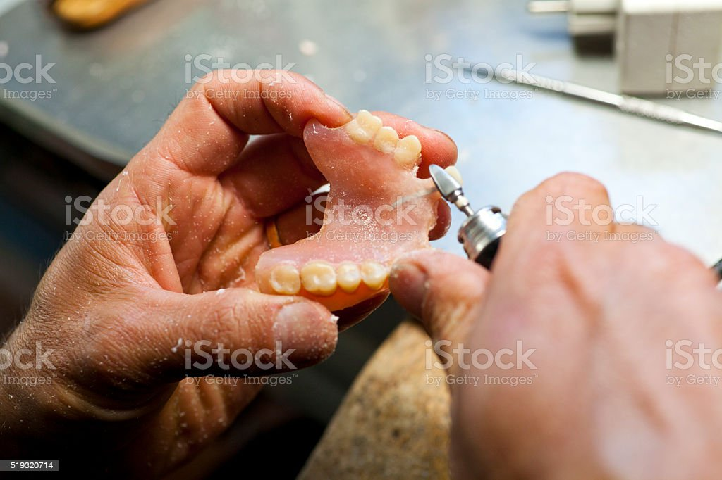 Repairing Artificial Human Teeth stock photo