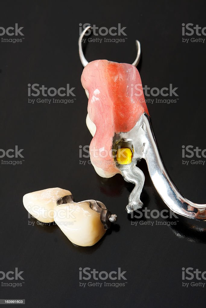 Replacement teeth stock photo