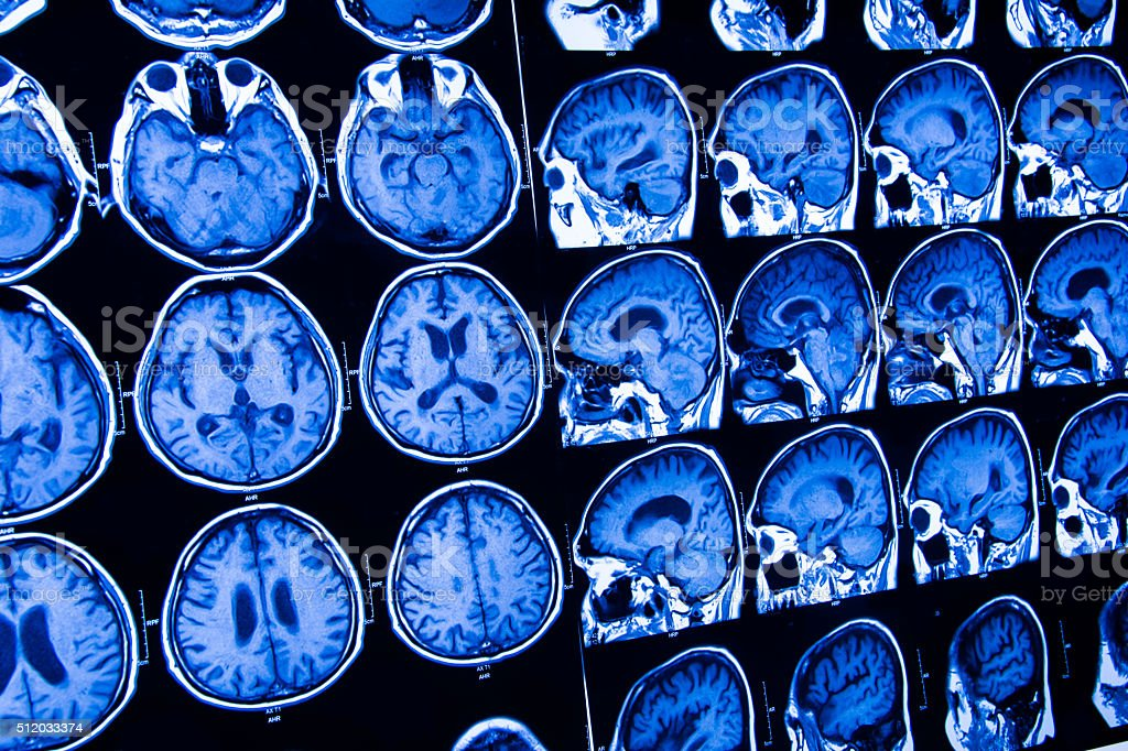 research in medicine. CT scan of the patient. stock photo