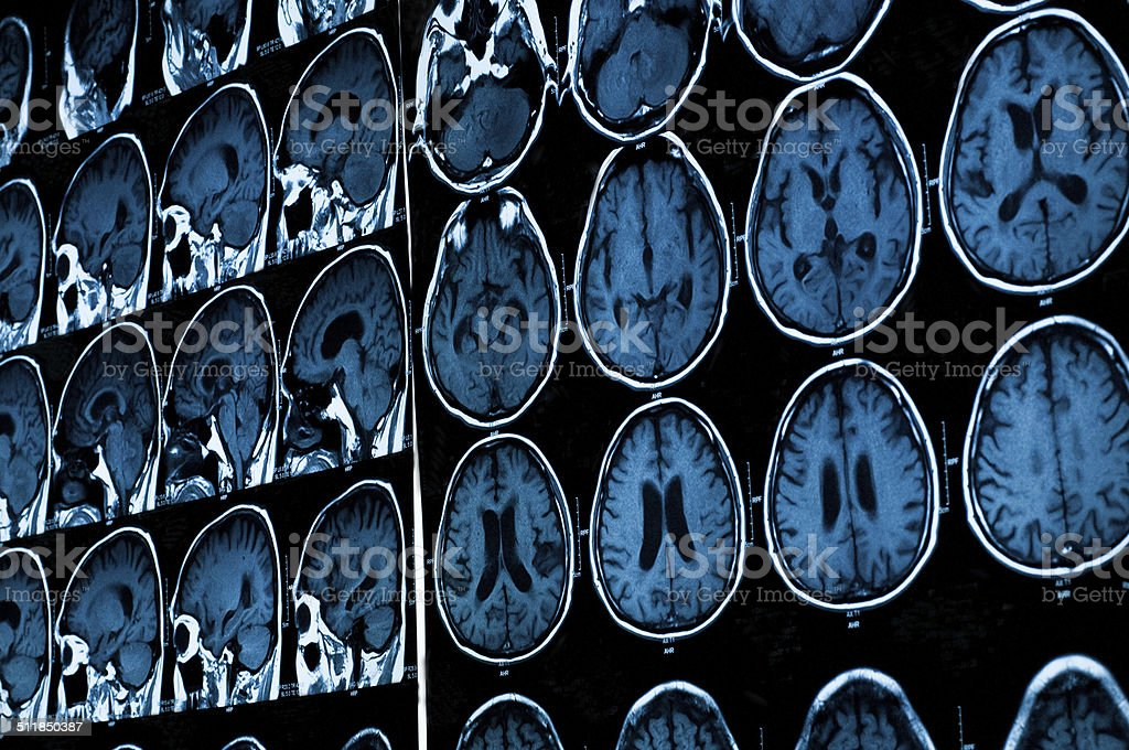 research in medicine. MRI scan of the patient. stock photo