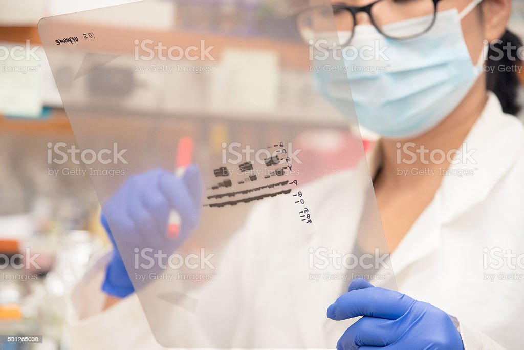 Researcher examining Western Blot result stock photo