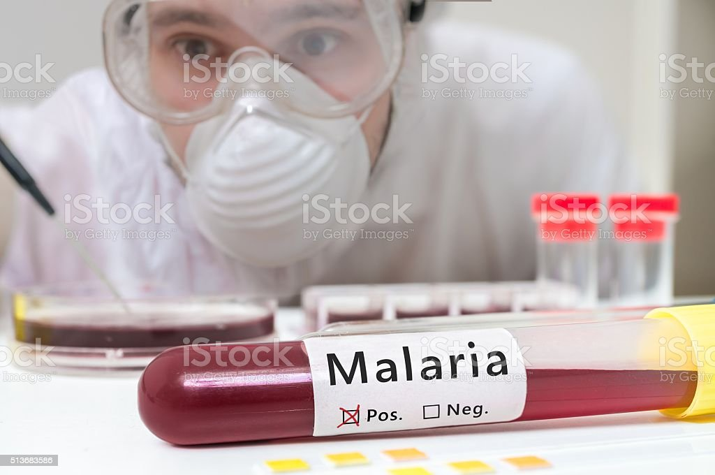 Researcher is analyzing test tube with Malaria. stock photo