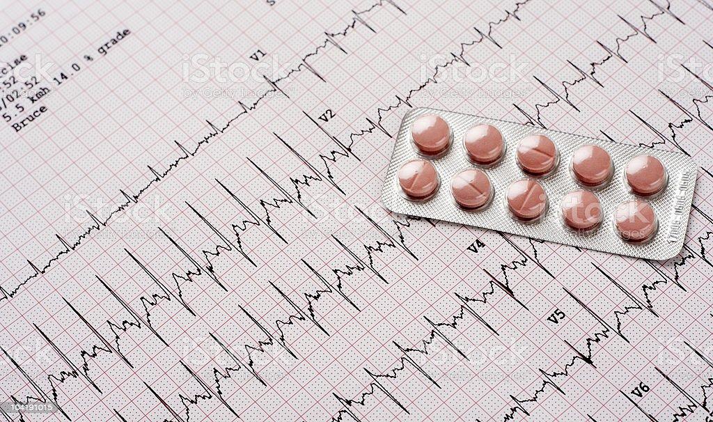 EKG results royalty-free stock photo
