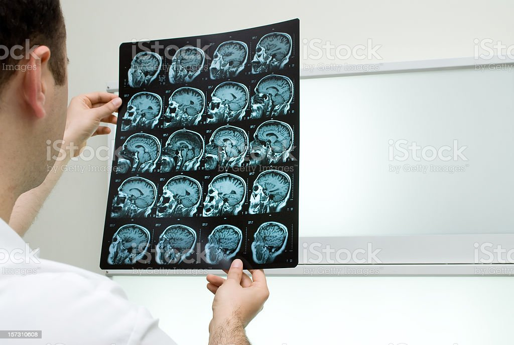 MRI Results royalty-free stock photo