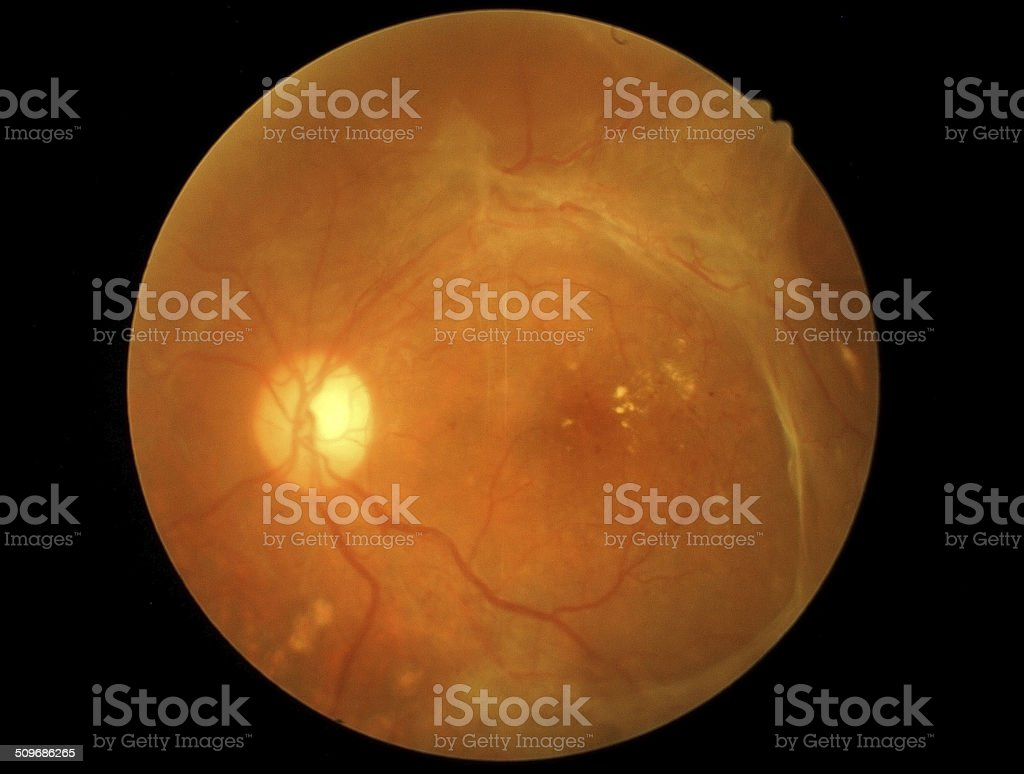 Retina of diabetic - diabetic retinophaty stock photo