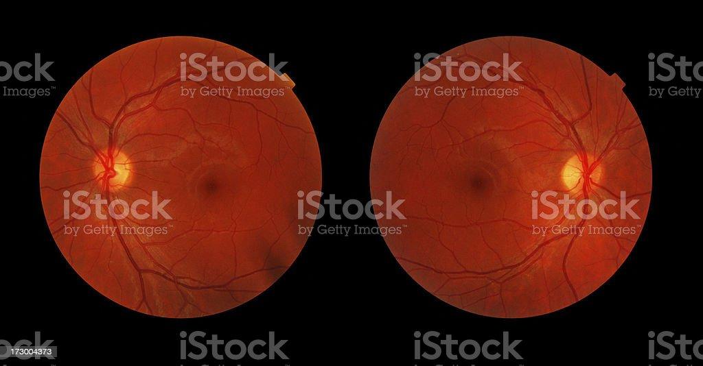 Retina Pair stock photo