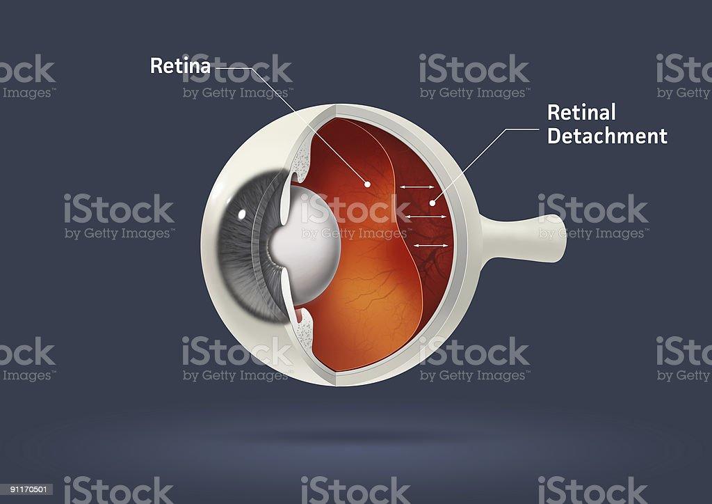 Retinal detachment stock photo
