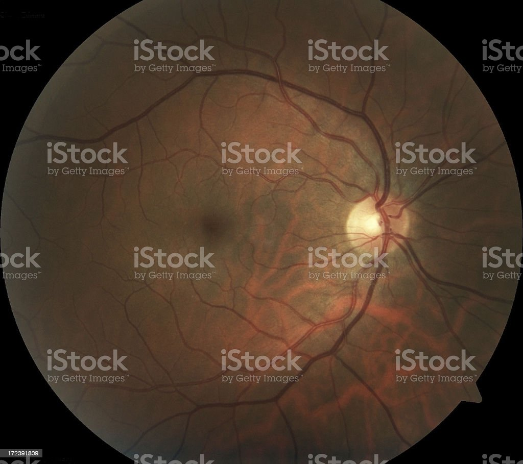 Retinal photograph of human eye stock photo