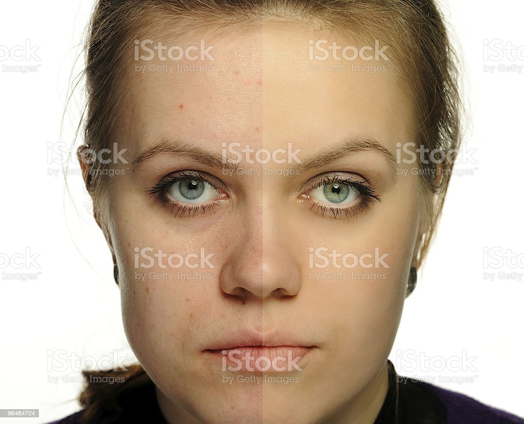 Retouch of a female portrait. Correction face women, an example stock photo